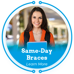 same day braces learn more