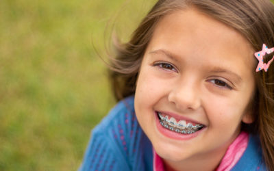 Most Common Orthodontic Issues