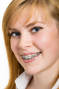 ceramic braces trussville